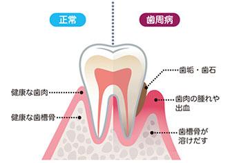 歯周病リスク検査